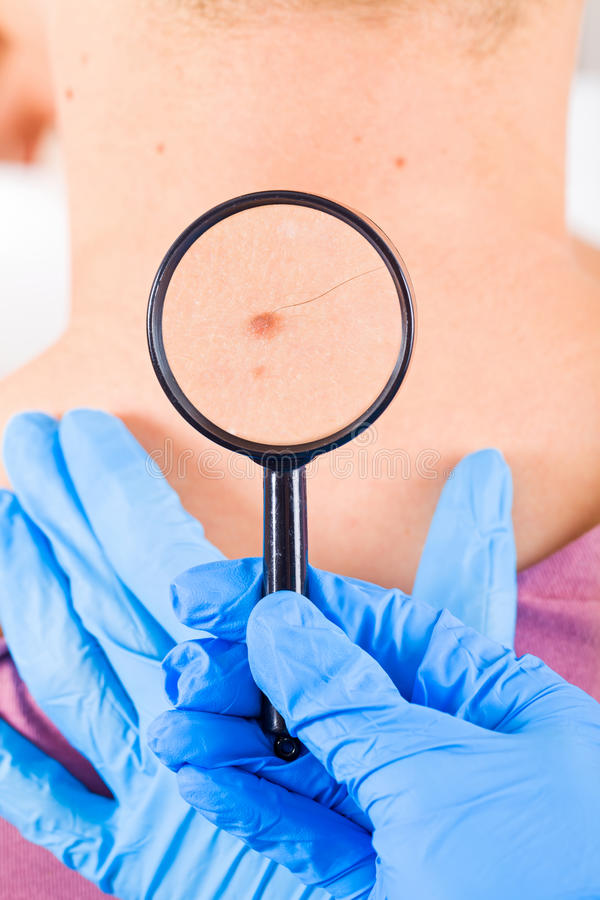 Birthmark. Dermatologist examines a birthmark of a male patient stock images