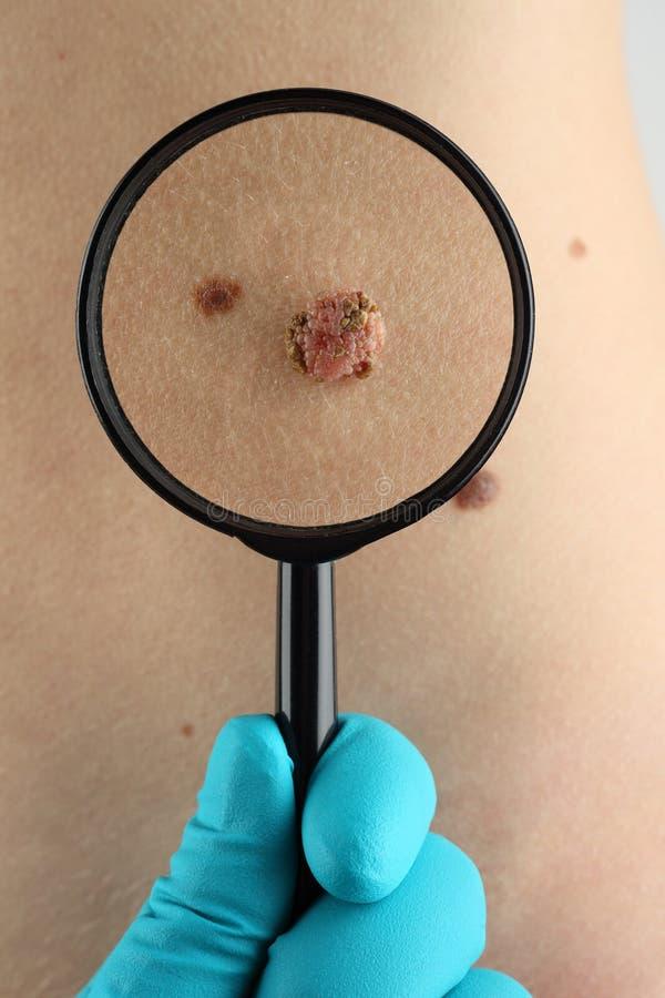 birthmark Il dermatologo esamina alto vicino della talpa immagini stock libere da diritti