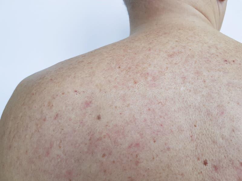 Birthmark pimples on the back men bad skin clinic. Birthmark pimples on the back man bad skin healthcare clinicexpertise stock image
