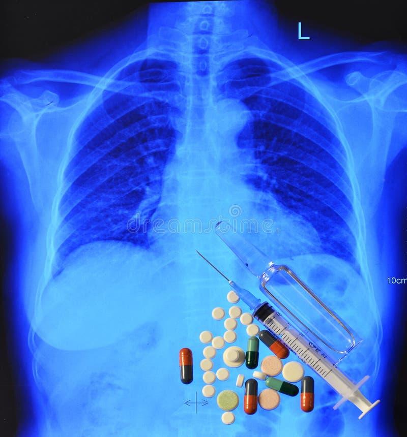 Blå röntgenstrålebröstkorg och medicin royaltyfri foto