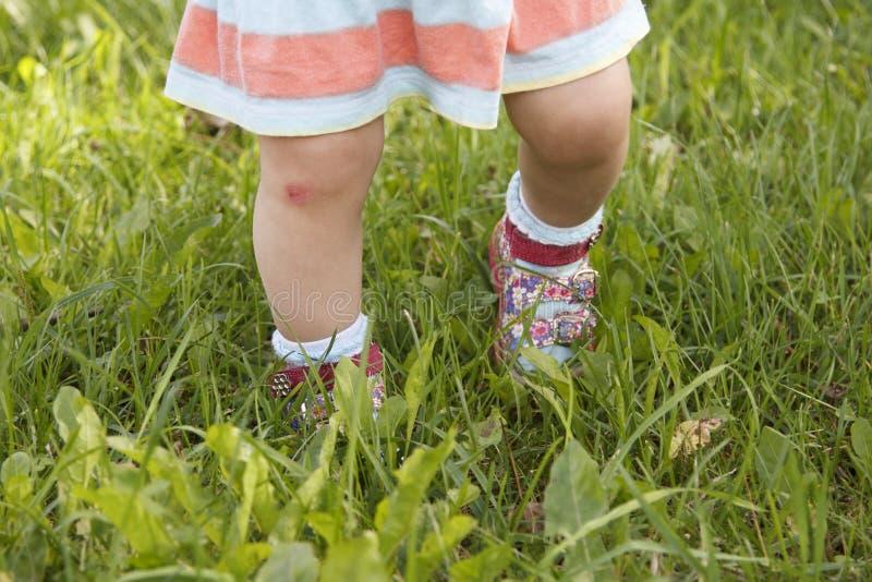 Blåmärke på knäet för barn` s arkivfoton