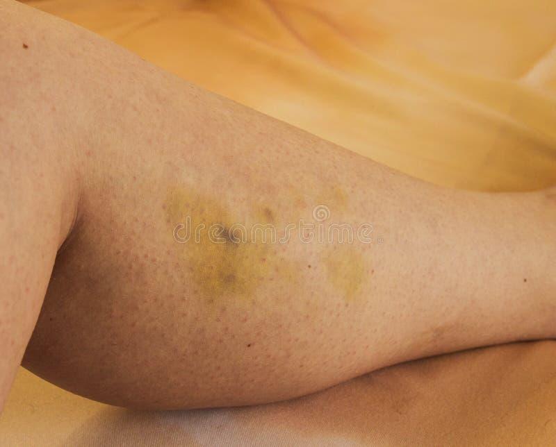 Blåmärke på låret, blått blåmärke från slaget på kvinnan fotografering för bildbyråer