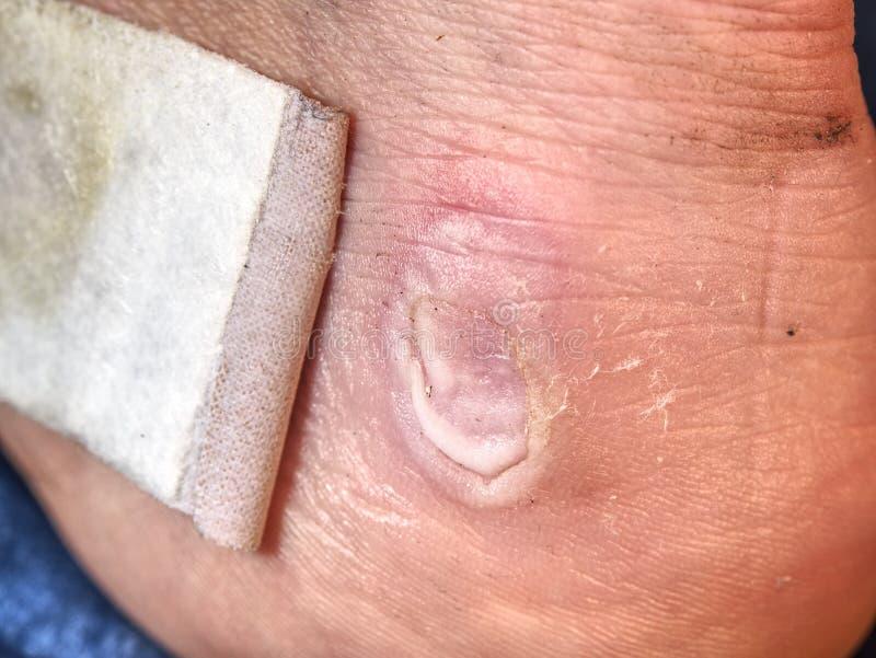 Blöta blodig smärtsam hud på manfot med självhäftande murbruk Achilles Heel arkivfoto