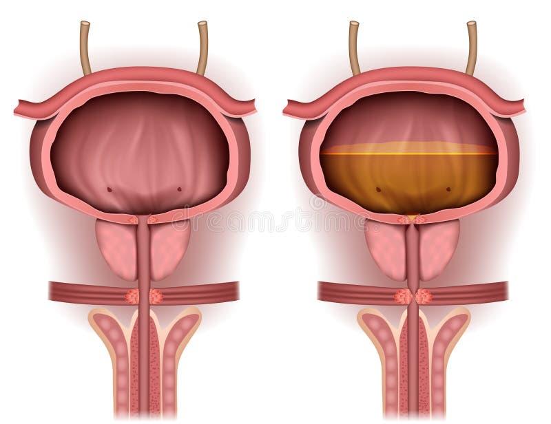Blaas leeg en die met urine 3d medische illustratie wordt gevuld stock illustratie