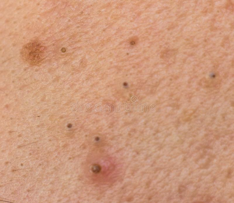 Black dots on face and pimples macro, comedo stock images