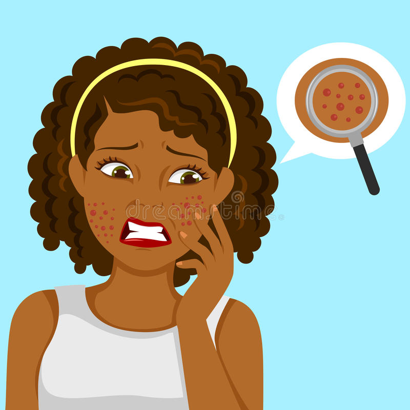 Black girl with pimples. Dark skinned girl upset about pimples on her face royalty free illustration