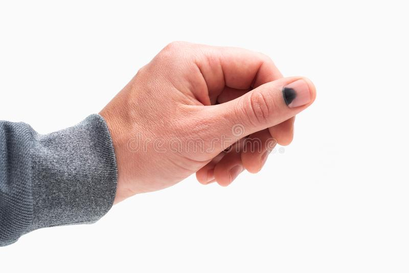 Black nail after a thumb injury. Black nail. Hammer on the thumb. Pain and hematoma after injury. Male hand isolated on white background royalty free stock photo