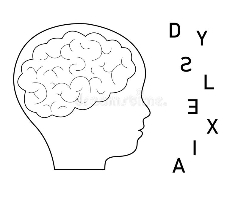 Black silhouette profile of child with brain and scattered letters of the word dyslexia. Speech impairment. Flat vector stock illustration