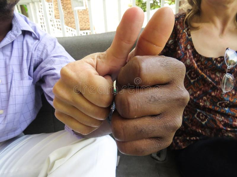 Black And White Hands Joined Together With Thumbs Up stock images