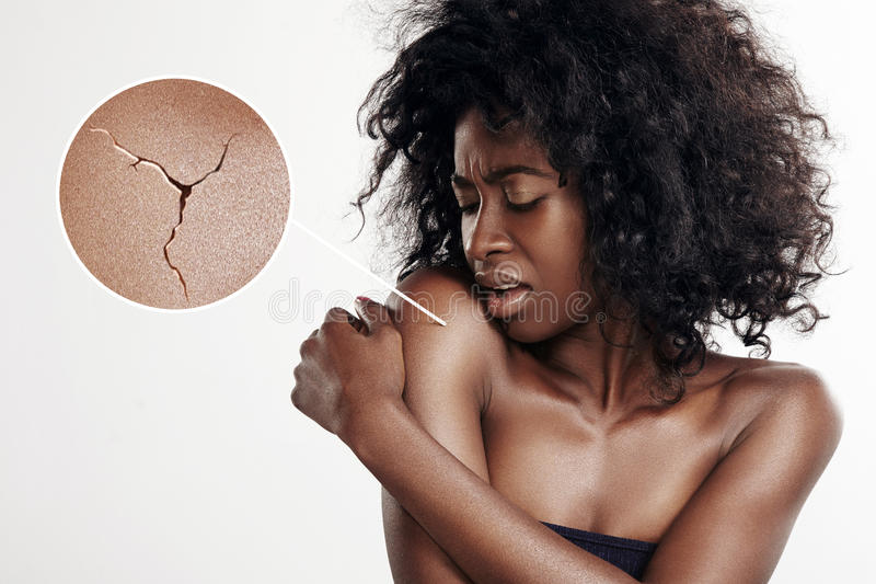 Black woman with a dry skin stock photos