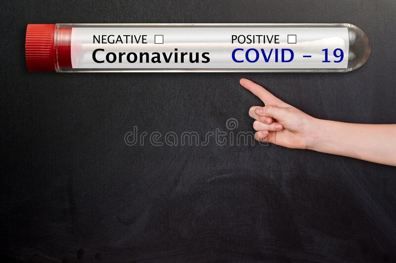 Coronavirus blood tube and Blackboard chalkboard. Hand with copyspace for text royalty free stock photos