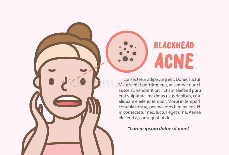 Blackhead acne woman cartoon action half body layout banner illustration vector on pink background. Beauty concept.  stock illustration