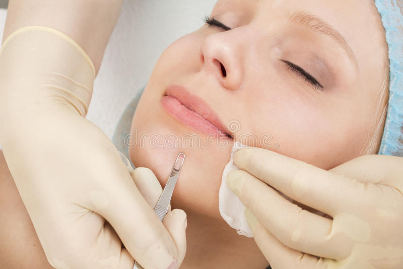 Blackhead Removal Tool. Beautician removes pimples on girl chin. Cosmetic facial cleansing royalty free stock photography