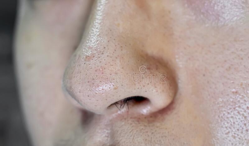 Blackheads Or Black Heads On Nose Of Asian Man Stock Image ...