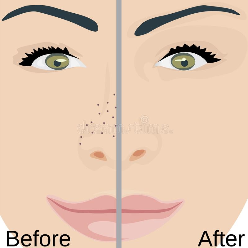 Blackheads remove on Nose treatment before and after. Pore reduce skin problems. Vector illustration vector illustration
