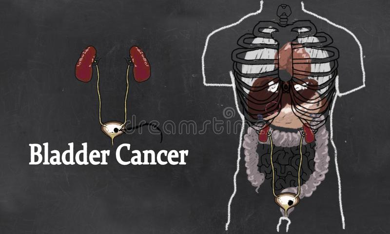 Bladder Cancer Illustration in Classic Drawing Style. Bladder Cancer Anatomy Illustration with Urinary Tract System. Simple Drawing in Classic Style on royalty free illustration