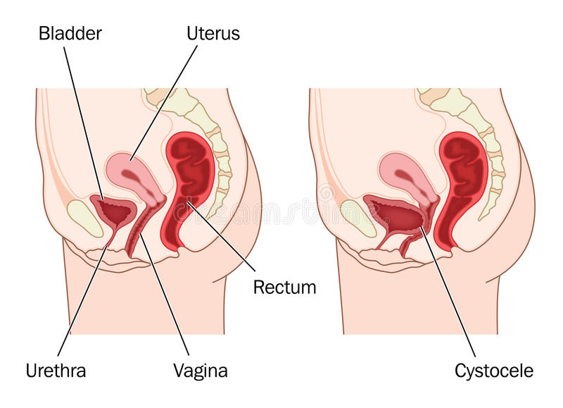 Bladder prolapse. Drawing to show normal female abdominal anatomy and a prolapsed bladder, resulting in a cystocele. Created in Adobe Illustrator. Contains royalty free illustration