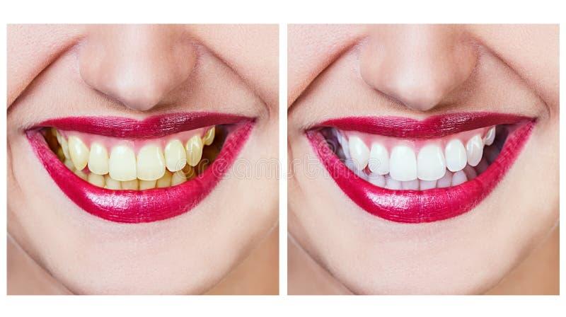 Blanchiment avant et après photographie stock