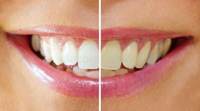 Blanchiment de dent - avant, ensuite images libres de droits