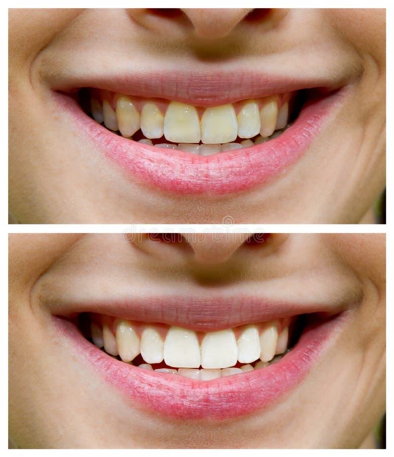 Blanchiment de dent - avant, ensuite photo libre de droits