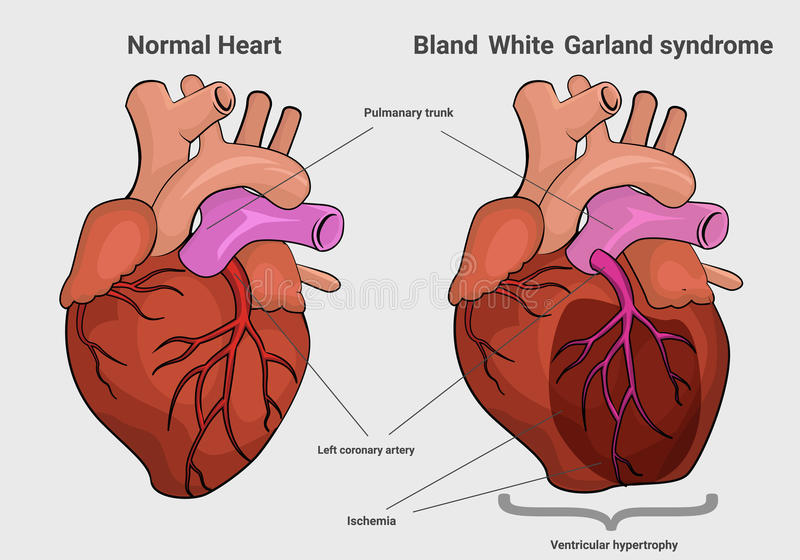 Bland White Garland syndrome versus normal heart anatomy royalty free illustration
