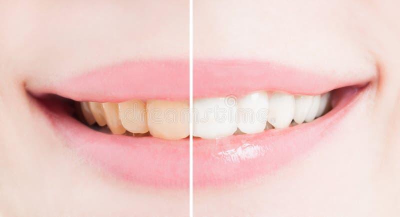 Blanquee los dientes después del blanqueo o de blanquear fotografía de archivo
