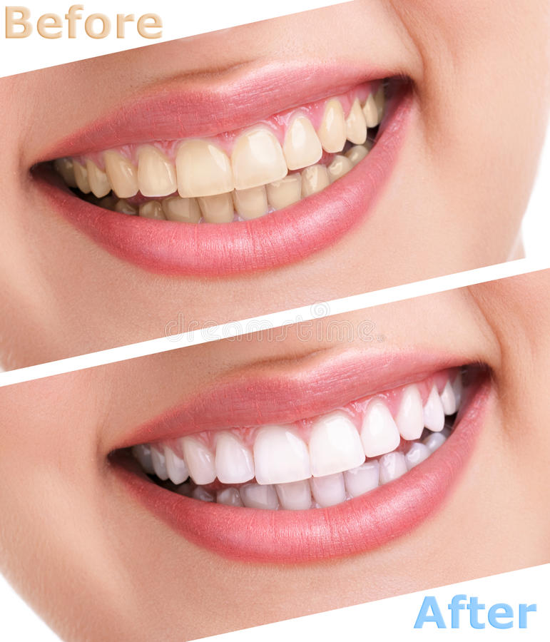 Bleaching teeth treatment royalty free stock image