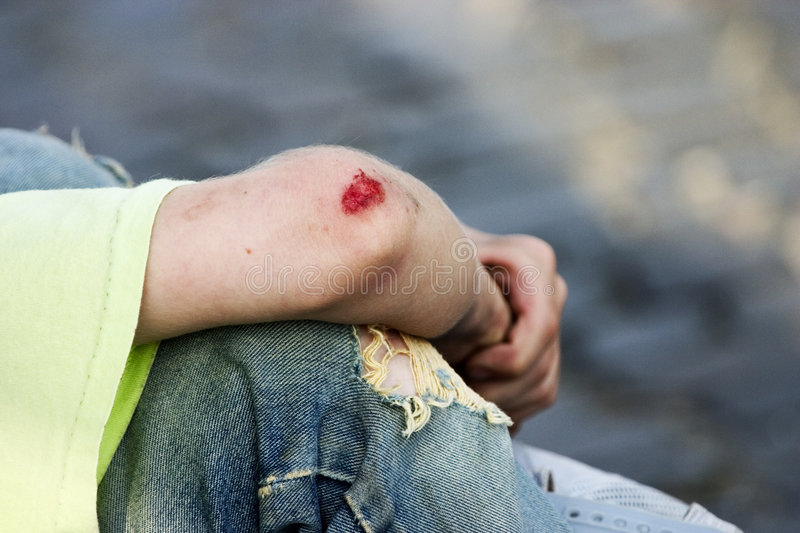 Download Bleeding Elbow stock image. Image of flow, wound, trouser - 229489