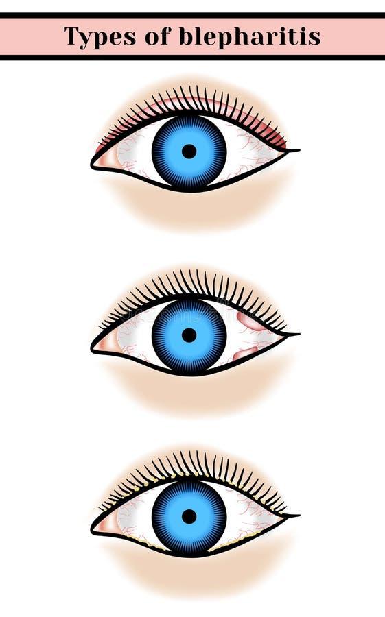 Blefarite Malattia dell'occhio purulenta e infiammatoria illustrazione di stock