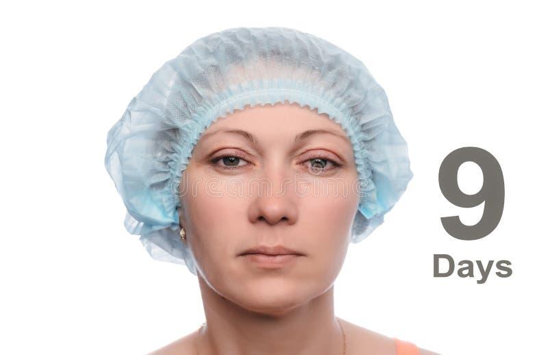 Blefaroplastica della palpebra superiore fotografia stock libera da diritti