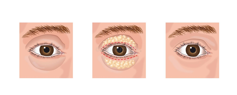 blepharoplasty ilustracji