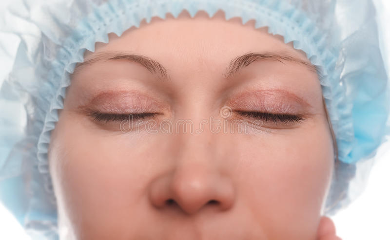 Blepharoplasty av övreögonlocket royaltyfri foto