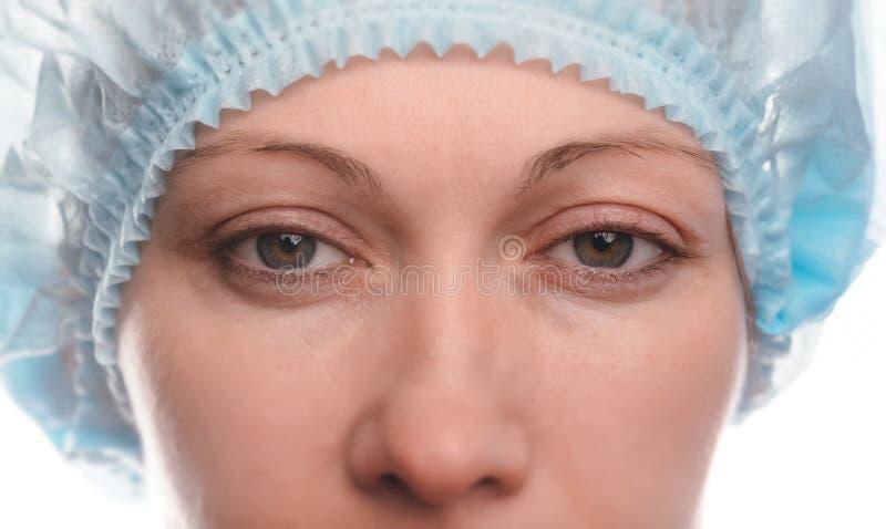 Blepharoplasty av övreögonlocket arkivbild