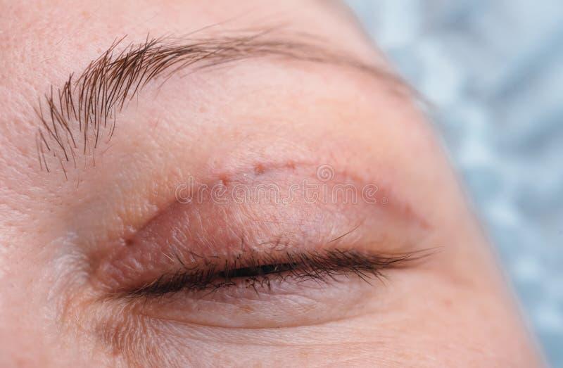 Blepharoplasty de la paupière supérieure photo libre de droits