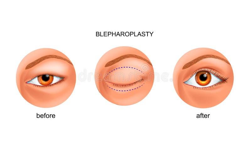 Blepharoplasty del párpado asiático ilustración del vector