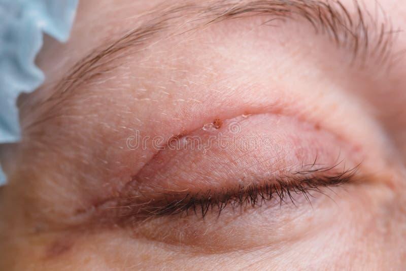 Blepharoplasty van het hogere ooglid royalty-vrije stock afbeelding