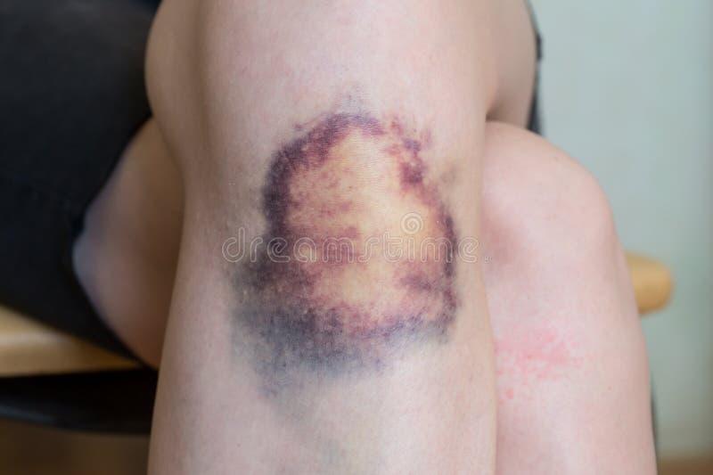 Blessure de contusion sur le genou de la jeune femme photographie stock