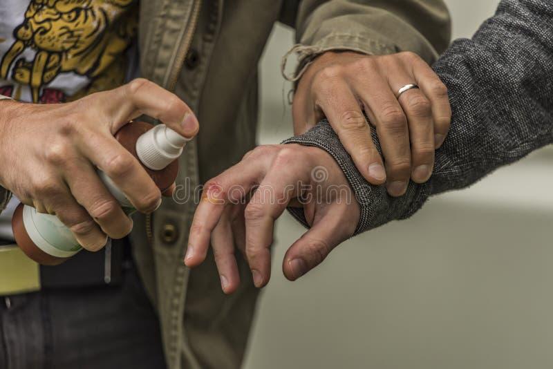 Blessure de main avec le jet désinfectant photo libre de droits