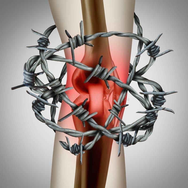 Blessure médicale de corps de douleur de genou illustration stock