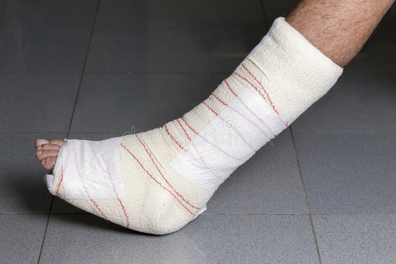 Blessures de tendon photo libre de droits