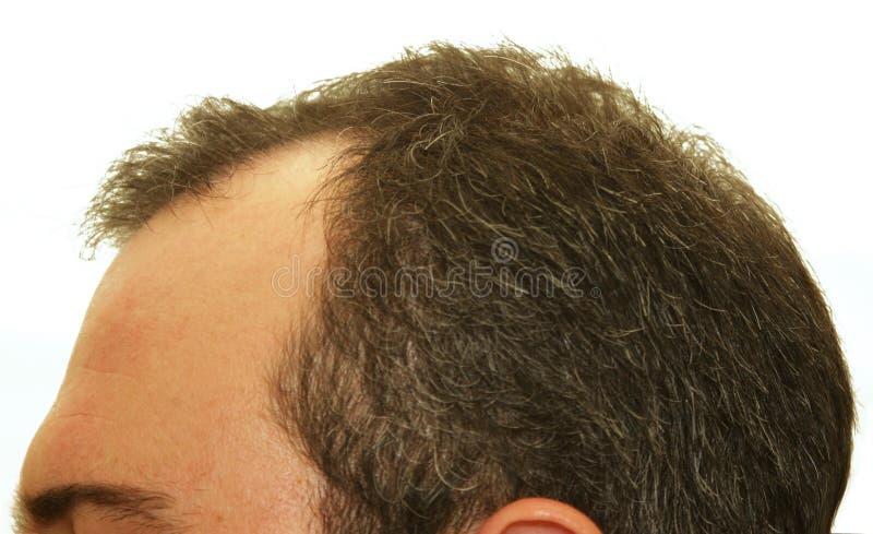 bli skallig huvud royaltyfria foton