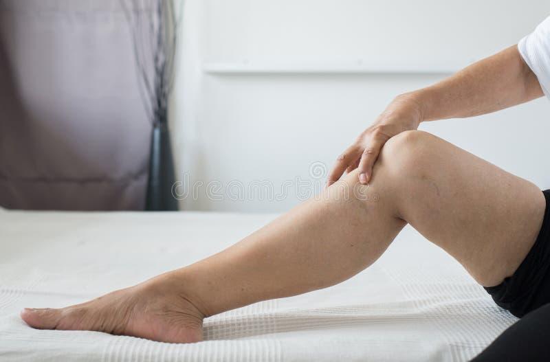 Blizny na nogi starszej kobiecie z problemayczną problemową skórą zamykają w górę zdjęcia royalty free