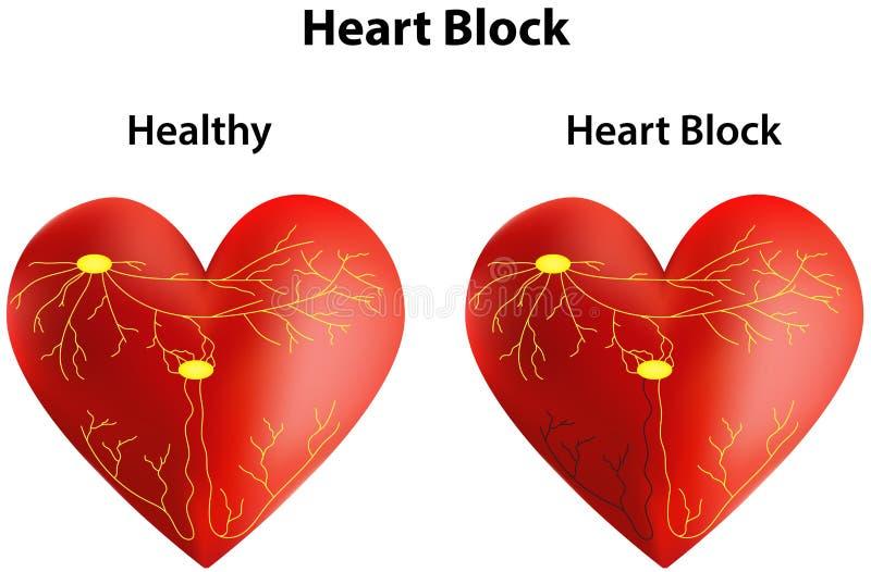 Blocage cardiaque illustration libre de droits