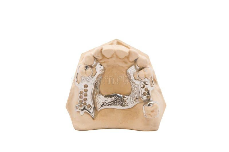 Download Blocco Per Grafici Del Metallo Fotografia Stock - Immagine di dentiera, clasp: 3893848