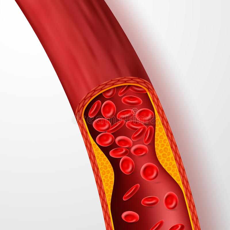Blocked blood vessel, artery with cholesterol thrombus. 3d vein with clot vector illustration. Medical artery blood, cholesterol disease, blocked flow royalty free illustration
