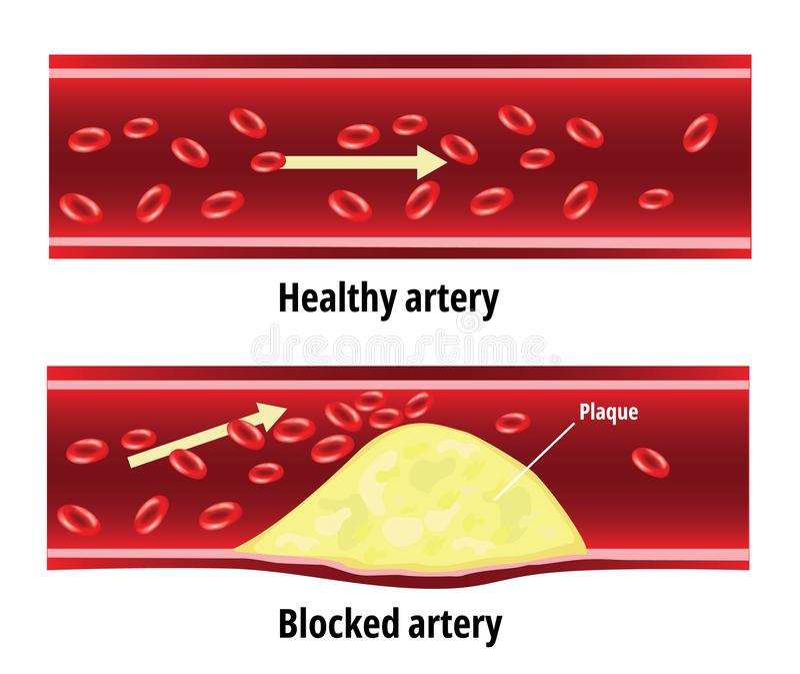 Blockierte Arterie, Fett gehaftet in der Blutarterie, Cholesterin stock abbildung