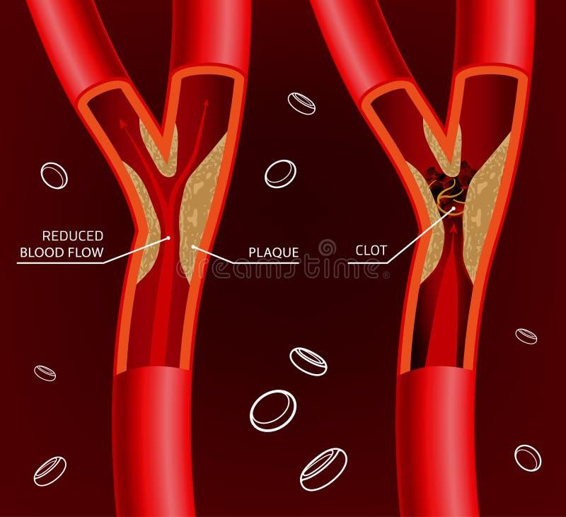 Blodåderbild vektor illustrationer