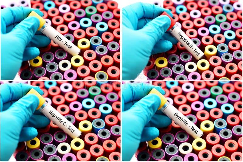Blod för könssjukdomprov arkivbilder