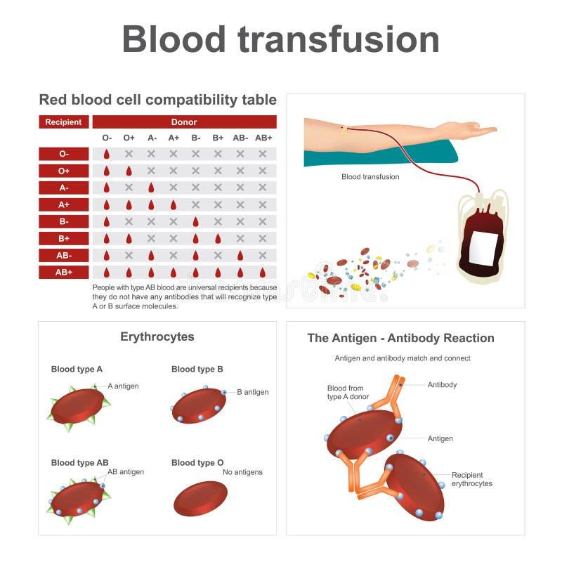 blod som samlar engångssatstransfusion vektor illustrationer