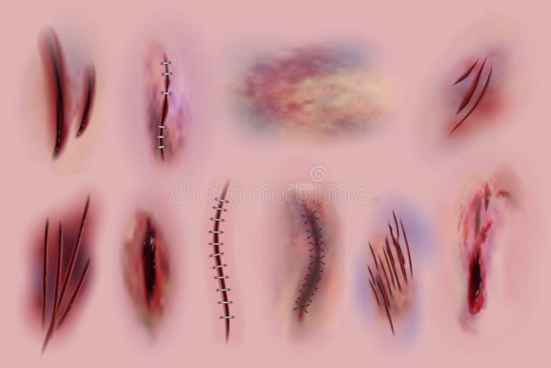 Blodiga sår Ärr, kirurgiska häftklammer och bruis, hudsnitt Blodig isolerad uppsättning för sårtexturer vektor stock illustrationer